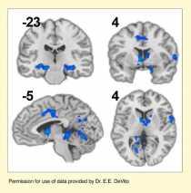行为治疗增加与认知控制有关的大脑活动