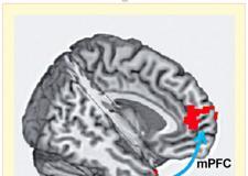脑电路连通性预测可卡因使用复发
