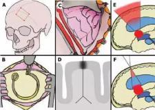 """号称复吸率只有10%的""""开颅脑科戒毒手术"""",为什么被紧急叫停?"""